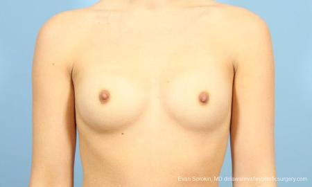 Philadelphia Breast Augmentation 8641 - Before Image