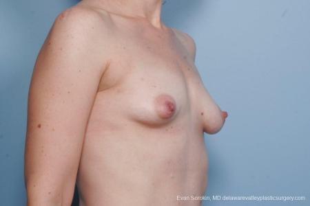 Philadelphia Breast Lift and Augmentation 8686 - Before Image 2