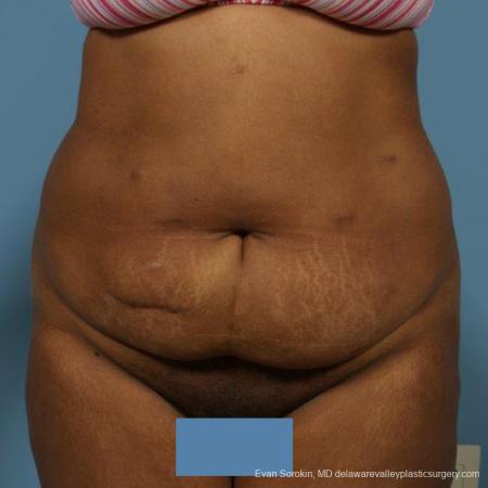 Philadelphia Abdominoplasty 9472 - Before Image 1