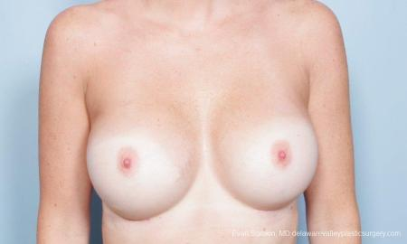 Philadelphia Breast Augmentation 9402 -  After Image 3