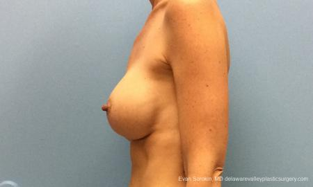 Philadelphia Breast Augmentation 10815 - Before and After Image 5