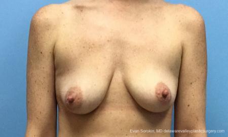 Philadelphia Breast Lift and Augmentation 10814 - Before Image