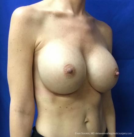 Philadelphia Breast Augmentation 13069 -  After Image 2