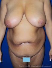 Philadelphia Mommy Makeover 8699 - Before Image