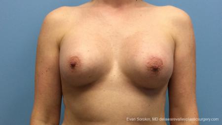 Philadelphia Breast Augmentation 13181 -  After Image 1