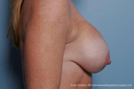 Philadelphia Breast Augmentation 8693 - Before Image 4