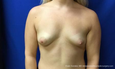 Philadelphia Breast Augmentation 12517 - Before Image 1