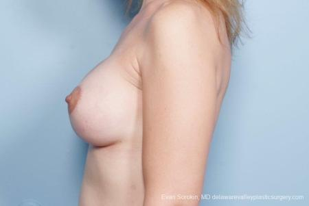 Philadelphia Breast Lift and Augmentation 8685 -  After Image 5