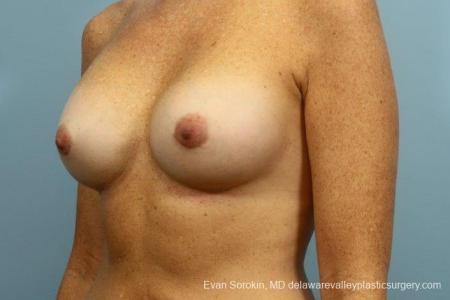 Philadelphia Breast Augmentation 8654 -  After Image 3