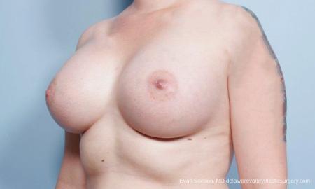 Philadelphia Breast Augmentation 9419 -  After Image 4