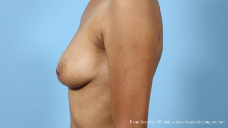 Philadelphia Breast Augmentation 9288 - Before and After Image 5