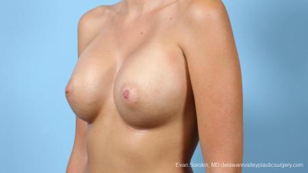 Philadelphia Breast Augmentation 9292 -  After Image 3