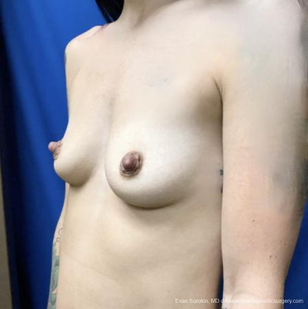 Breast Augmentation: Patient 161 - Before and After Image 3