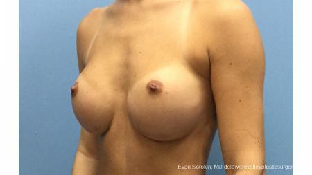 Philadelphia Breast Augmentation 13177 - Before Image 4