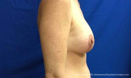 Philadelphia Breast Lift and Augmentation 10814 -  After Image 3