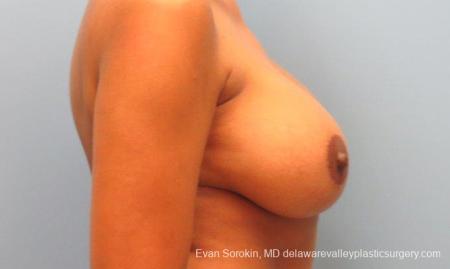 Philadelphia Breast Augmentation 10112 -  After Image 5