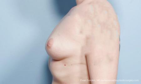 Philadelphia Breast Augmentation 9419 - Before and After Image 5