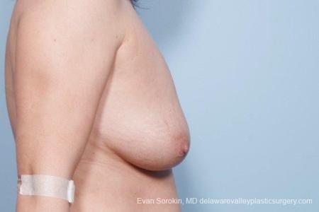 Philadelphia Breast Lift and Augmentation 8671 - Before Image 4