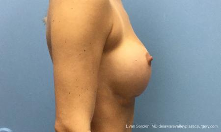 Philadelphia Breast Augmentation 10816 - Before Image 3