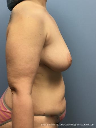 Mommy Makeover: Patient 13 - Before Image 3