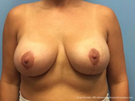 Philadelphia Breast Lift and Augmentation 13070 -  After Image 1