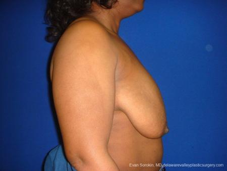 Philadelphia Breast Lift and Augmentation 8684 - Before and After Image 4