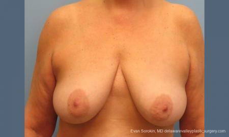Philadelphia Breast Lift and Augmentation 9431 - Before Image 1