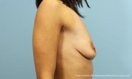 Philadelphia Breast Augmentation 9205 - Before Image 3