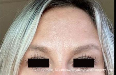 BOTOX® Cosmetic: Patient 4 - After Image