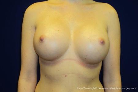 Philadelphia Breast Augmentation 8670 -  After Image 1