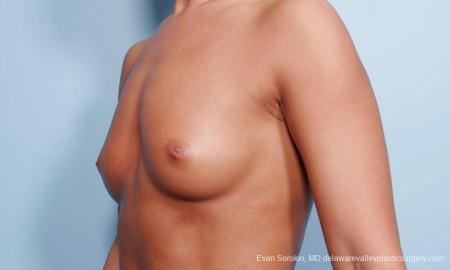 Philadelphia Breast Augmentation 9299 - Before Image 2