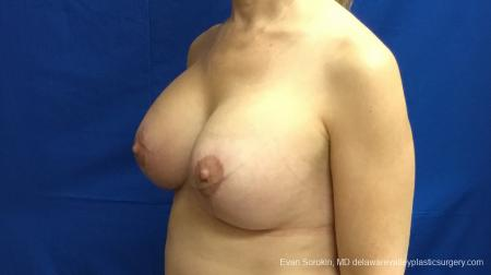Philadelphia Breast Lift and Augmentation 13179 -  After Image 4