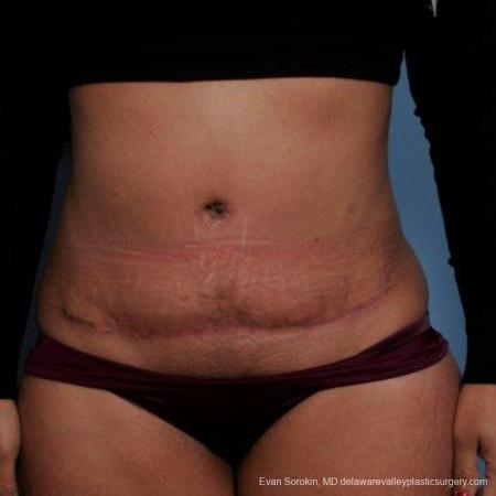 Philadelphia Abdominoplasty 9479 -  After Image 1