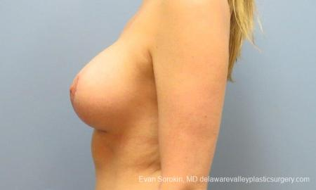 Philadelphia Breast Lift and Augmentation 10116 -  After Image 5