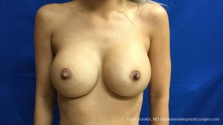 Philadelphia Breast Augmentation 13178 -  After Image 1