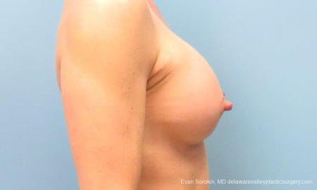 Philadelphia Breast Augmentation 9744 -  After Image 3