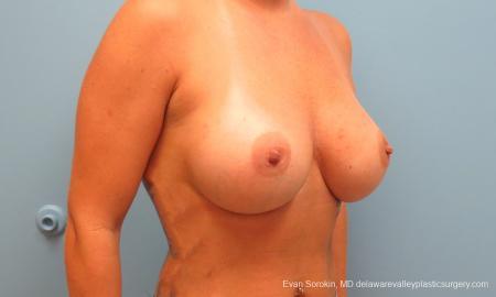 Philadelphia Breast Augmentation 9388 -  After Image 2