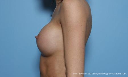 Philadelphia Breast Augmentation 9421 -  After Image 5