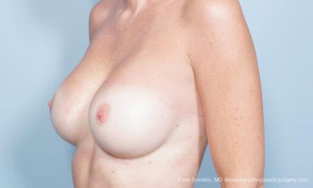 Philadelphia Breast Augmentation 8777 -  After Image 3