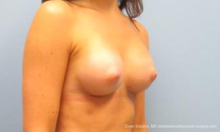 Philadelphia Breast Augmentation 9621 -  After Image 2