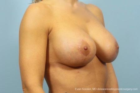 Philadelphia Breast Augmentation 8709 -  After Image 2