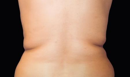 CoolSculpting®: Patient 14 - Before Image 1