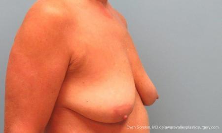 Philadelphia Breast Lift and Augmentation 9598 - Before Image 2
