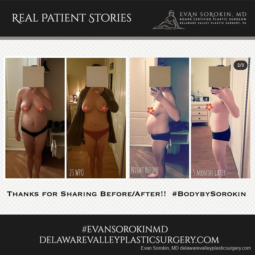 Real Patient Stories: Patient 20 - Before and After 1