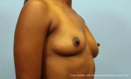 Philadelphia Breast Augmentation 8768 - Before Image 2