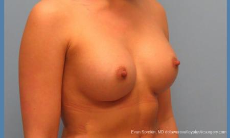 Philadelphia Breast Augmentation 9410 -  After Image 2