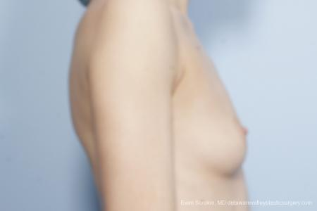 Philadelphia Breast Augmentation 8644 - Before Image 3