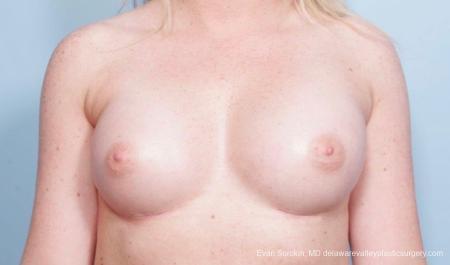 Philadelphia Breast Augmentation 8778 -  After Image 1