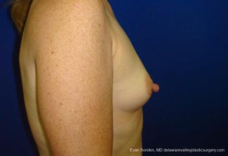 Philadelphia Breast Augmentation 8765 - Before Image 4