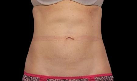 CoolSculpting®: Patient 1 - After Image 1